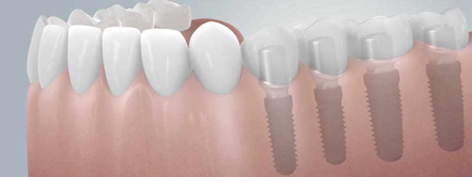 <blockquote><h3>CAMLOG Implantate</h3>Feste Zähne sind dank Implantaten nicht unerreichbar</blockquote>